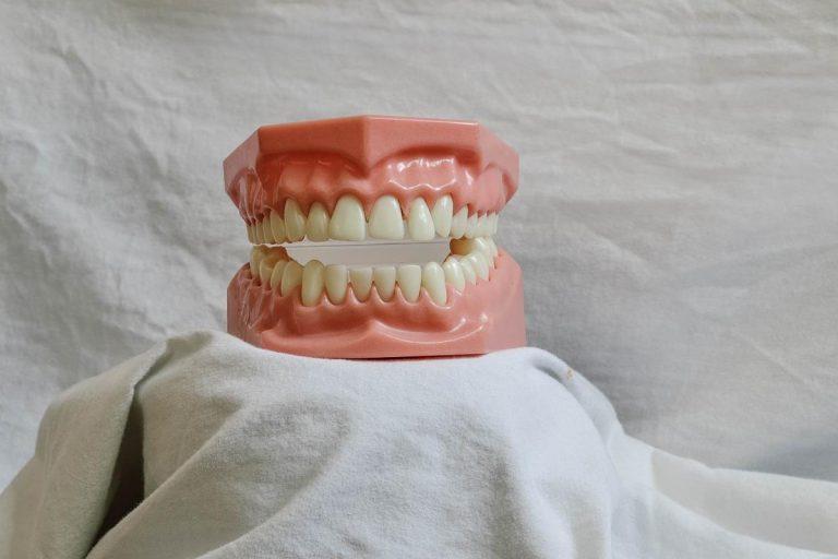 Implanty zębów – czy warto je wybrać? Zalety i cena